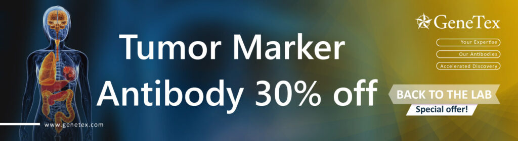 Tumor Marker Antibody 30% off